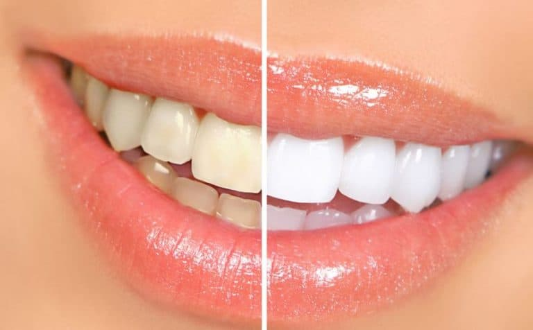 Whitten Teeth
